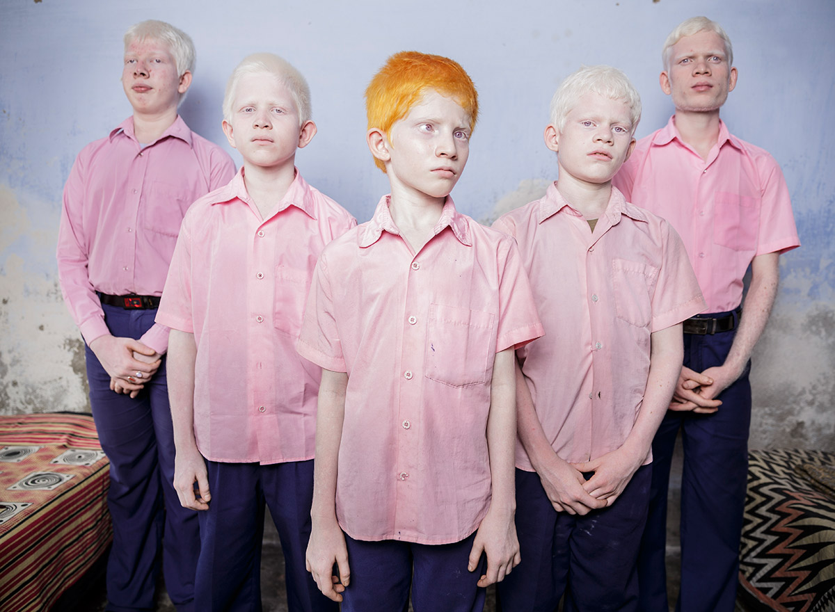 7. albino children, blind in his room at a school for the blind in West Bengal, India 2013