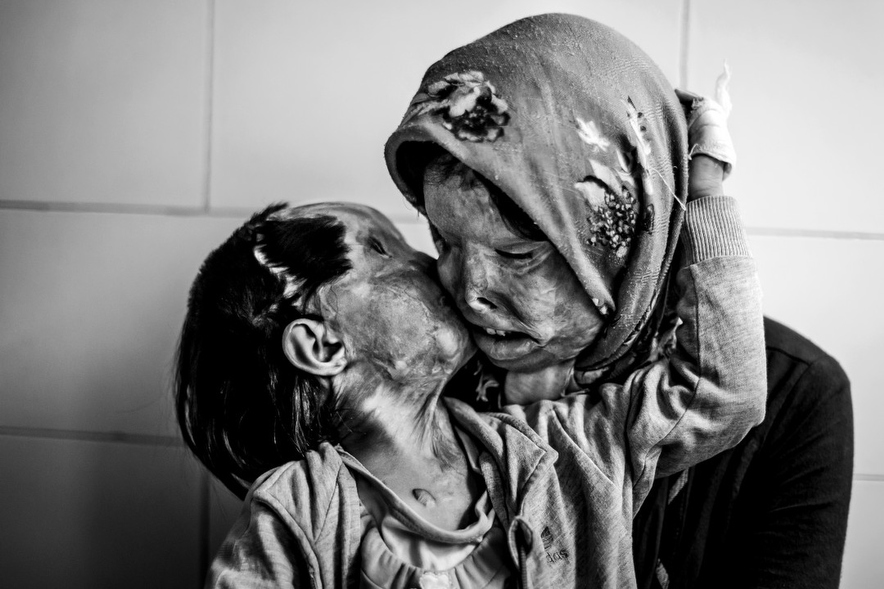 5. A mother and her three year old daughter, who were attacked with acid by their husband and father